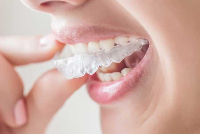 bruxismo-ferula-dental