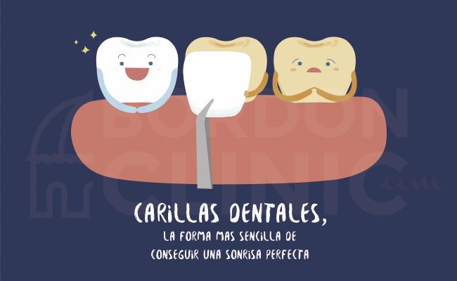 Carillas dentales precio