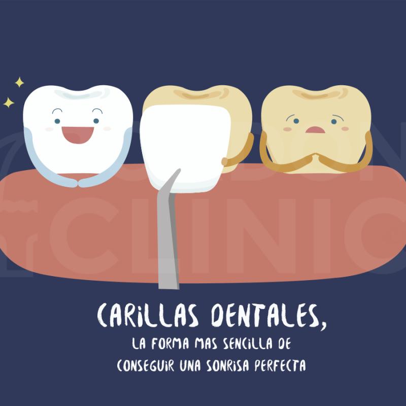 carillas-dentales-precio