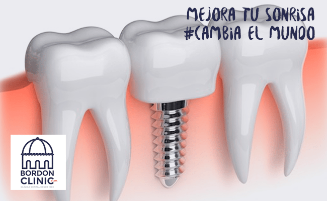 Periimplantitis Clinica dental Madrid Bordonclinic