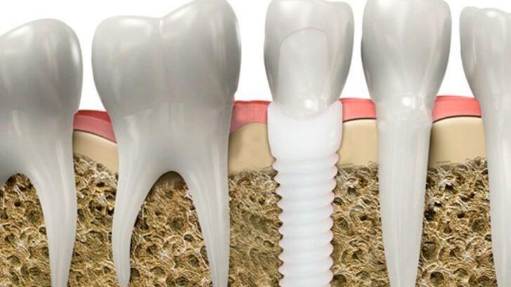 Implantes De Zirconio - Odontología Holística