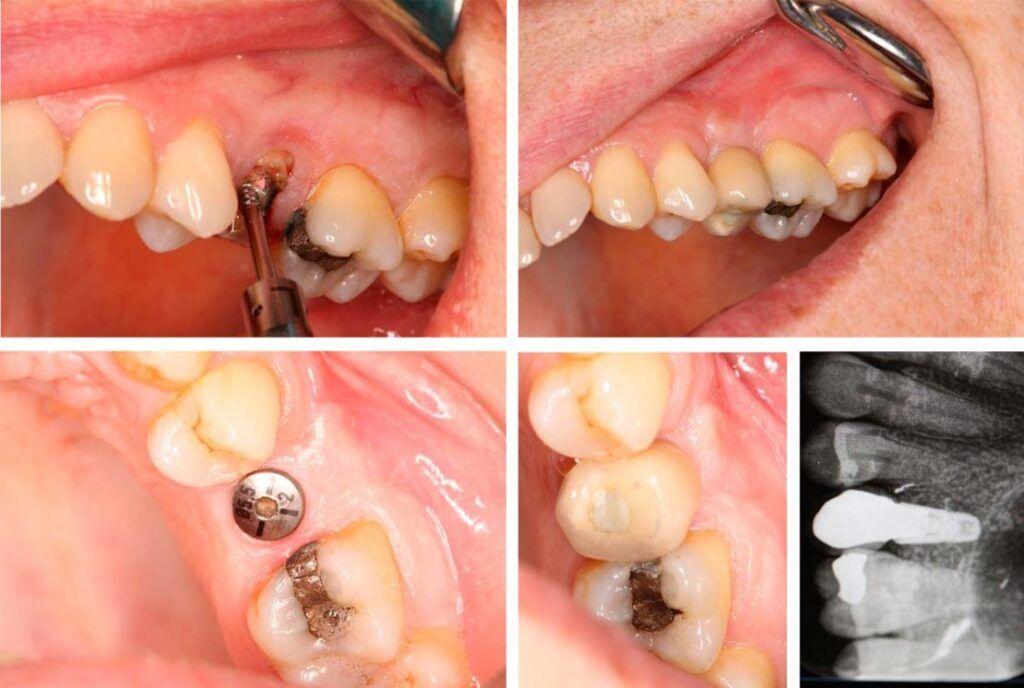 implantes dentales con corona - implante dental unitario - Clínica dental Madrid centro BORDONCLINIC
