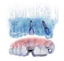 Simplant System - implantología Madrid - Instalaciones clínica dental Madrid centro BORDONCLINIC