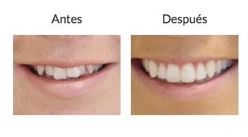 MIkala antes y después Invisalign
