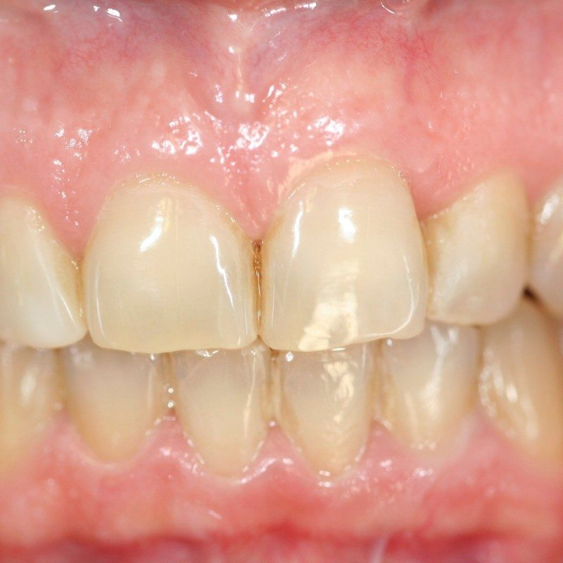Blanqueamiento dental Madrid Láser Philips Zoom