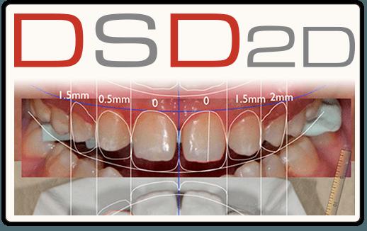 Diseño de sonrisa digital - Digital Smile Design (DSD Madrid)