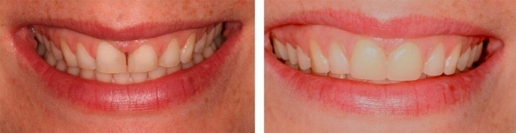 Diastema antes y despues BordonClinic