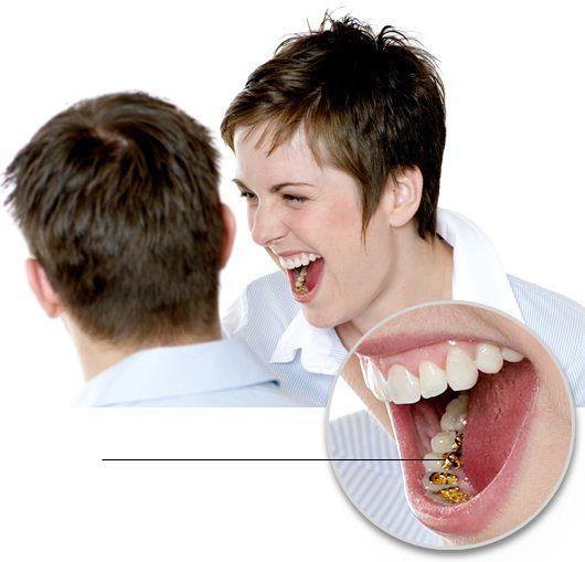 Ortodoncia lingual Madrid - Brackets linguales Sistema Incógnito TM