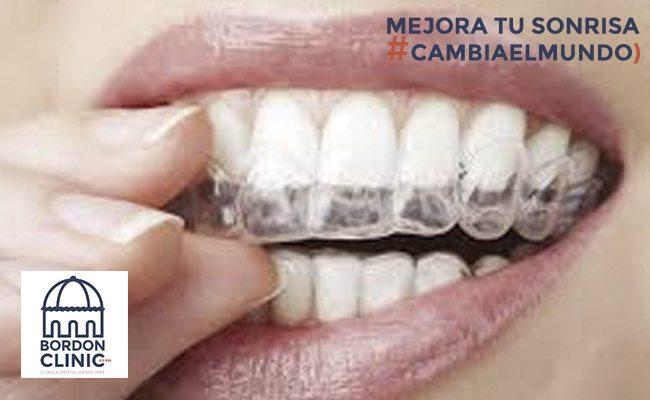 Invisalign la ortodoncia que no lo parece