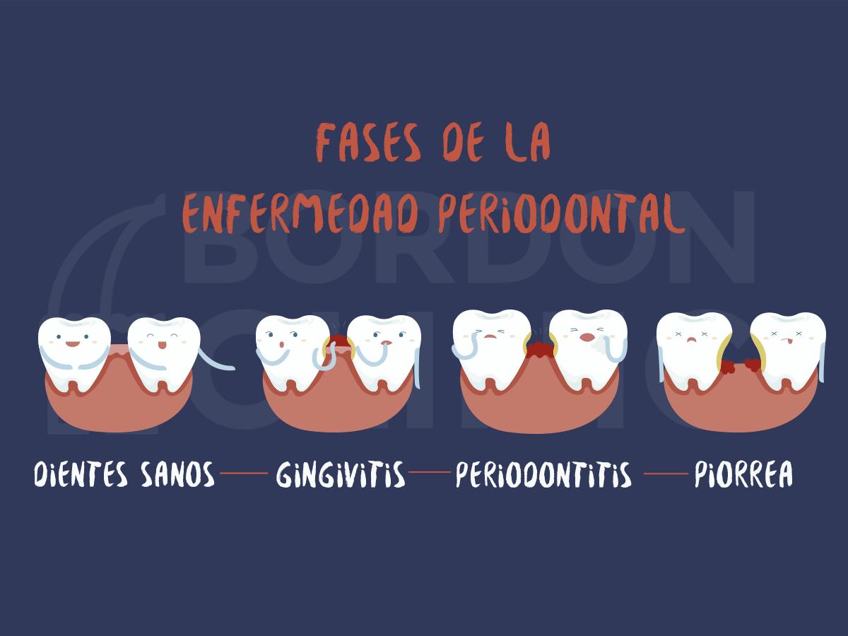 Fases de la Enfermedad Periodontal Gingivitis