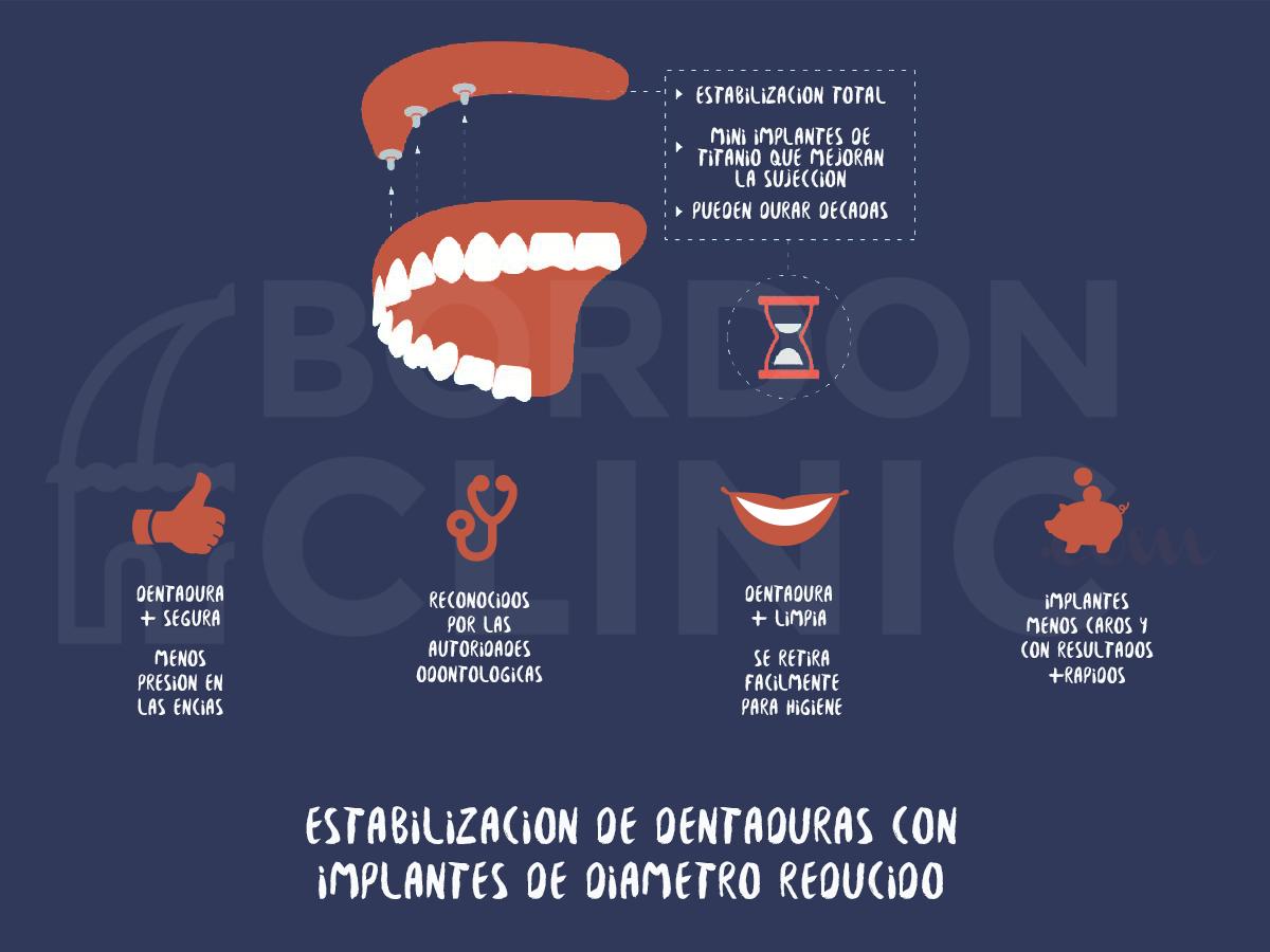 infografia_implantes_diametro_reducido