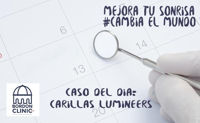 CASO DEL DÍA: CARILLAS DENTALES LUMINEERS PRECIO 2