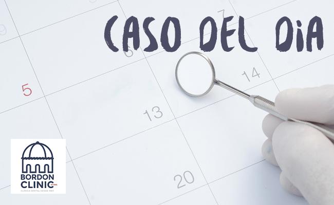 CASO DEL DÍA: CARILLAS DENTALES LUMINEERS PRECIO