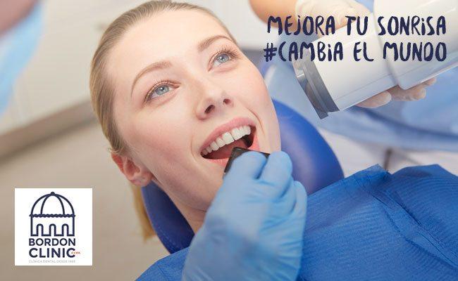 implantes_dentales_bordonclinic