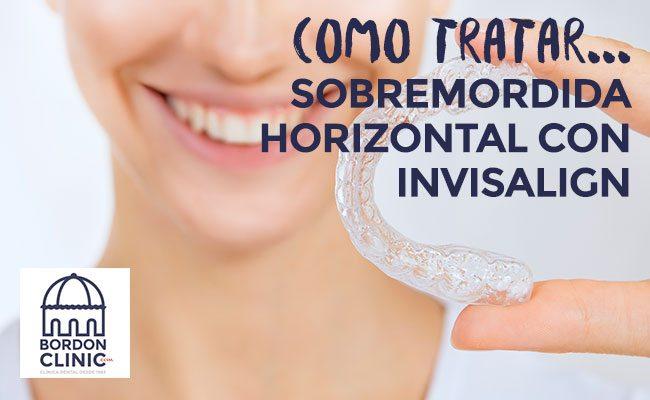 SOLUCIONAR UNA SOBREMORDIDA HORIZONTAL CON INVISALIGN