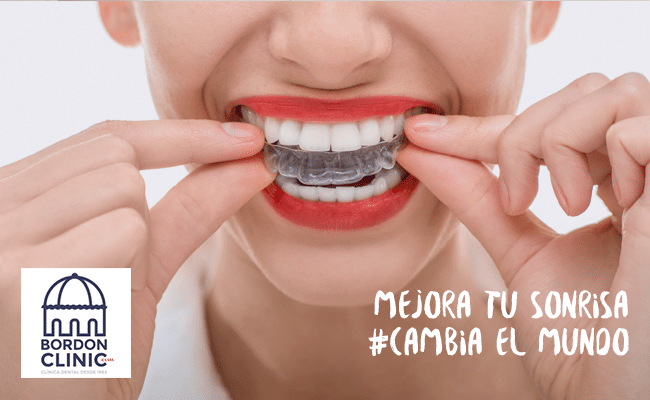 precio de ortodoncia invisible Invisalign Clínica dental Madrid Bordonclinic