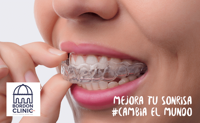 limpiar los aligners Invisalign Madrid Clinica dental Madrid Bordonclinic