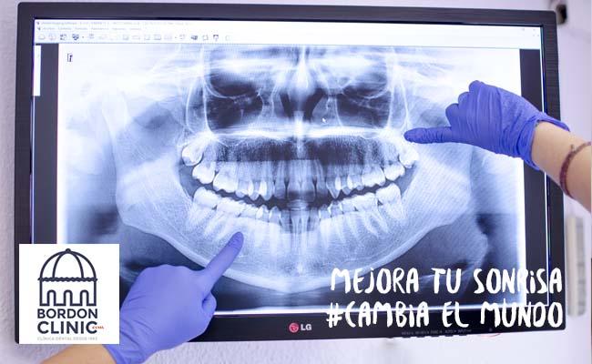 clínica dental con radiografía intraoral BORDONCLINIC