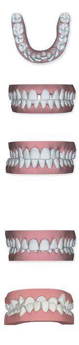 ortodoncia-invisible-problemas-comunes
