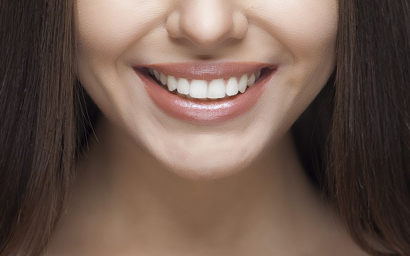 Cómo blanquear los dientes: consejos imprescindibles