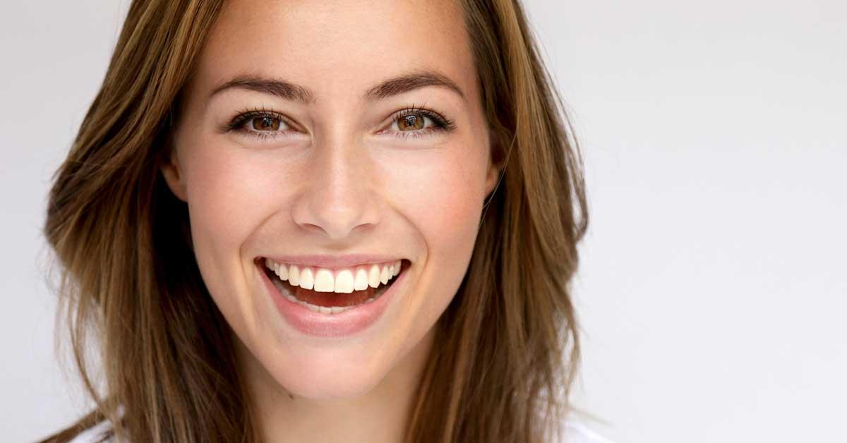 Brackets Tipos y Precio - Clínica Dental Bordonclinic