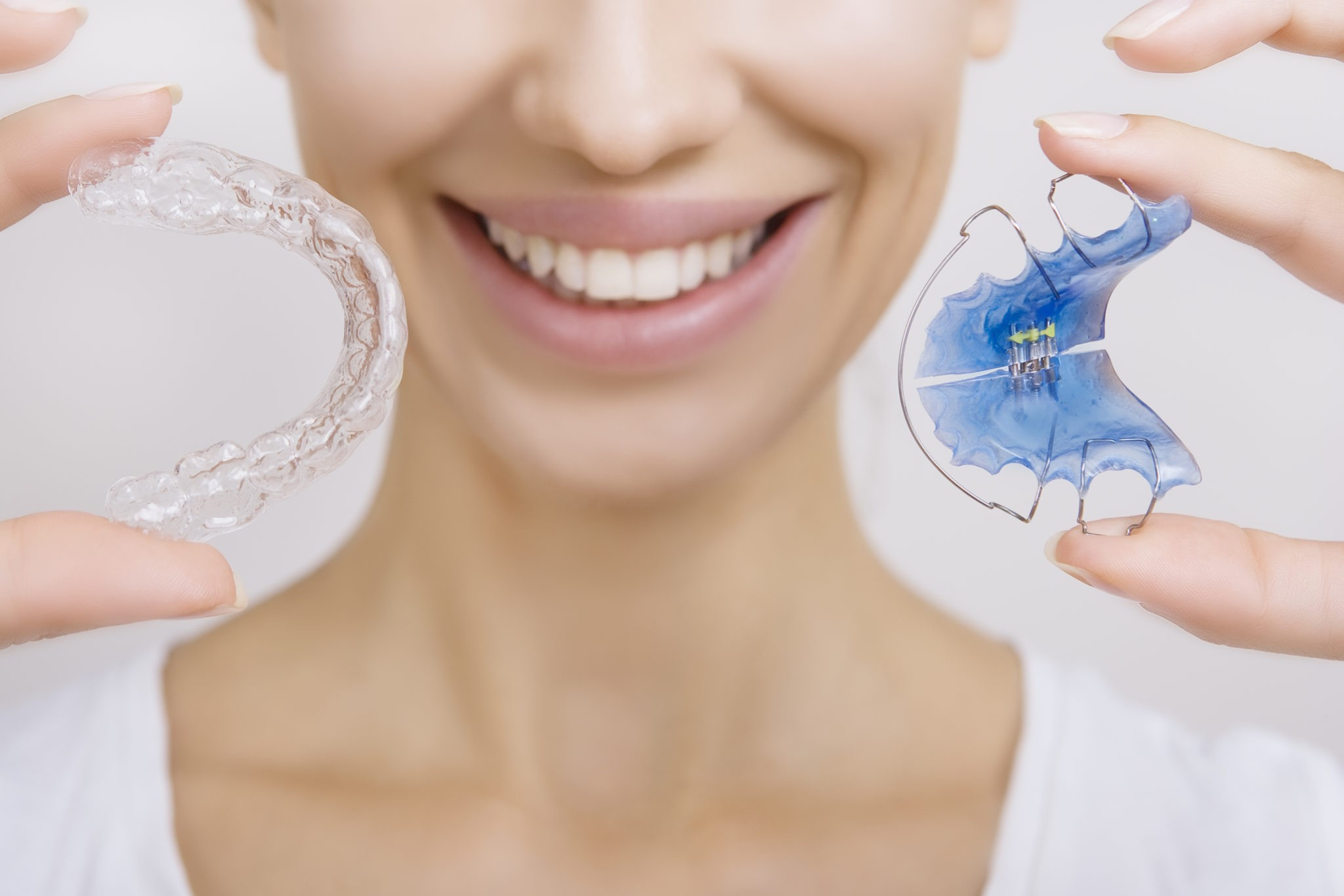 Retenedores Dentales - Tipos - Clínica BordonClinic