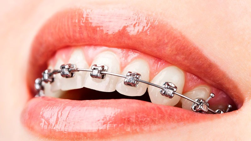 brackets autoligables Madrid - Invisalign precio - ortodoncia invisible - - Clínica dental Madrid centro BORDONCLINIC