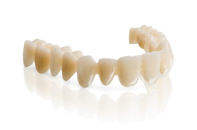 PMMA - material protesis dental