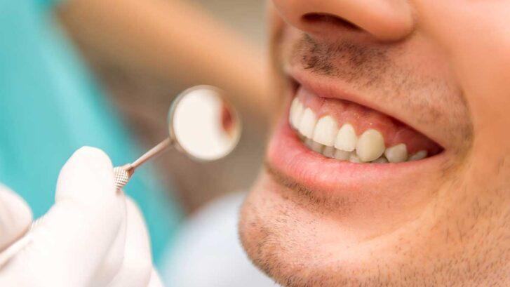 Sonrisa Gingival: Causas Y Tratamiento