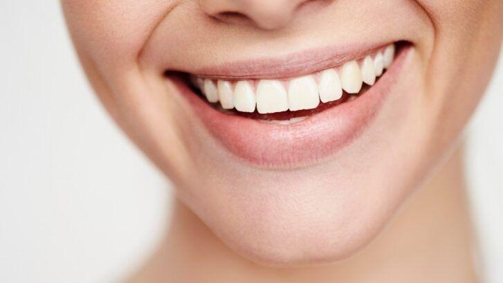 Abrasión Dental: Conoce Sus Causas Y Sus Tratamientos - Clínica Dental Bordonclinic