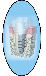 Anatomía alrededor de los implantes