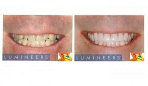 antes y después en tratamiento con carillas de porcelana.