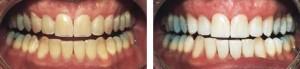 Resultados reales con Blanqueamiento dental combinado ZOOM