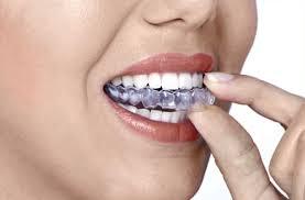 Férula de ortodoncia transparente colocándose