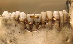 Implantes ligando con oro a los dientes adyacentes